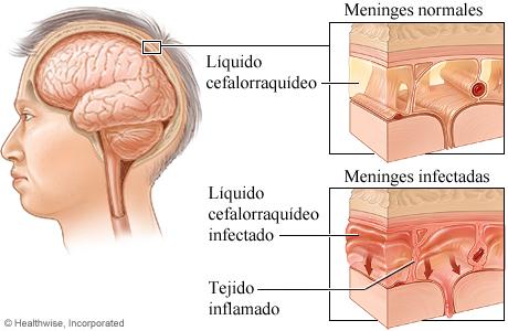 Comparación de meninges normales con meninges infectadas