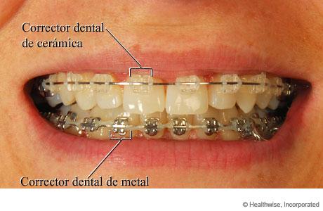 Boca de una persona con correctores dentales, que muestra correctores de cerámica arriba y correctores de metal abajo