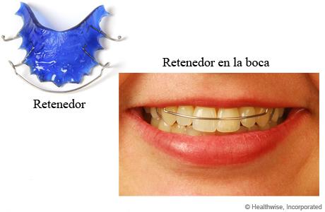 Retenedor y foto de retenedor en la boca de una persona