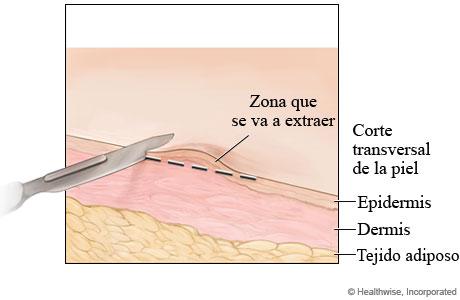 Biopsia de la piel por rasurado