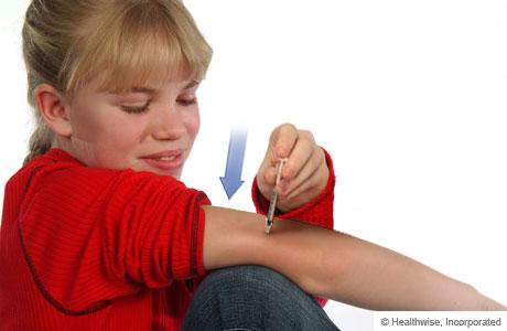 Cómo introducirse la aguja en la piel