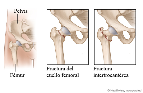 Dos tipos de fractura de cadera