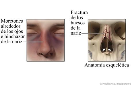 Fractura en la nariz