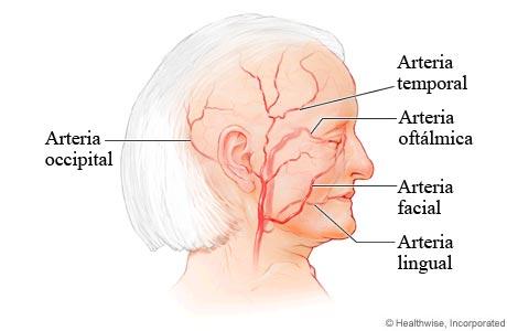 Arterias comúnmente afectadas por la arteritis de células gigantes