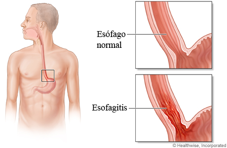 Esófago normal comparado con esofagitis