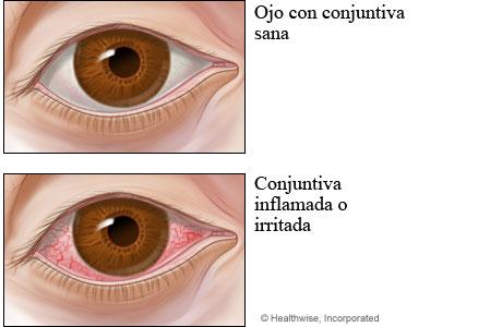 Conjuntiva sana comparada con conjuntivitis