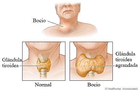 Vistas interiores de una glándula tiroidea de tamaño normal y una glándula tiroidea agrandada (bocio)