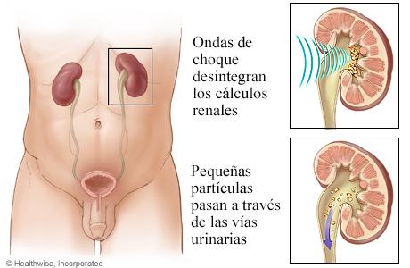 Cómo funciona la litotricia para los cálculos renales