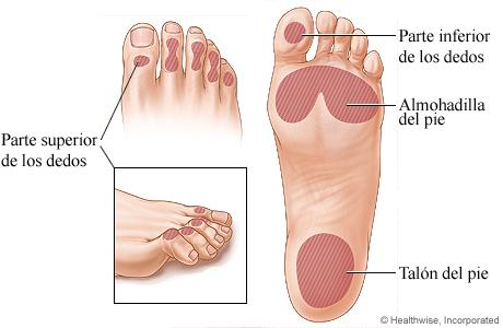 Lugares comunes de las úlceras del pie