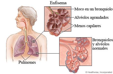 Imagen del tejido de un pulmón normal y de uno con enfisema