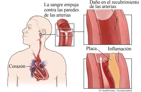Cómo daña a las arterias la presión arterial alta
