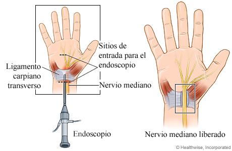 Cirugía endoscópica de liberación del túnel carpiano
