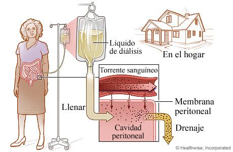 El proceso de diálisis peritoneal