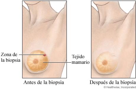 Biopsia abierta del seno (antes y después)