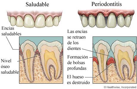 Encías saludables y enfermedad avanzada de las encías, con detalle de ambas