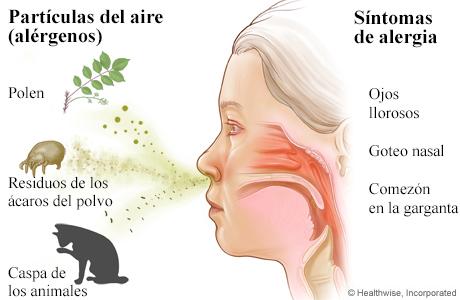 Respirar polen, residuos de los ácaros del polvo y caspa de los animales, y los síntomas de alergia que estos provocan