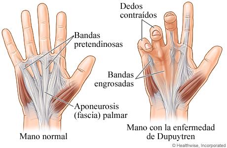 Imagen de mano normal y mano con enfermedad de Dupuytren