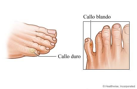 Callo duro y callo blando en los dedos del pie