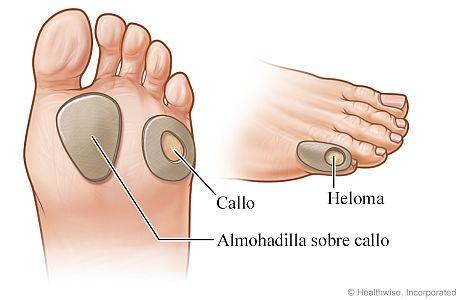 Almohadillas sobre heloma en dedo pequeño del pie y sobre callos en la planta del pie