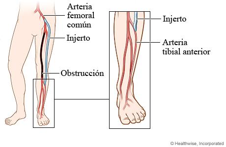 Arteria obstruida y posición del injerto en la cirugía de derivación femorotibial