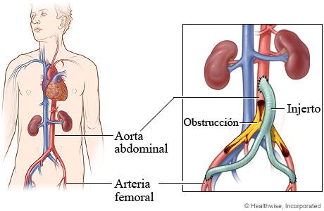 Arteria abdominal y arteria femoral con detalle de una obstrucción y de un injerto