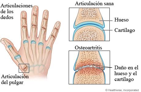 Osteoartritis de la mano