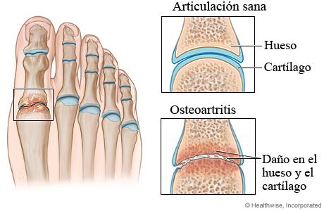 Articulación sana y osteoartritis del pie