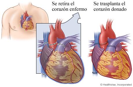 Corazón enfermo que muestra dónde se separaron los vasos sanguíneos, y corazón trasplantado que muestra dónde se unieron los vasos sanguíneos