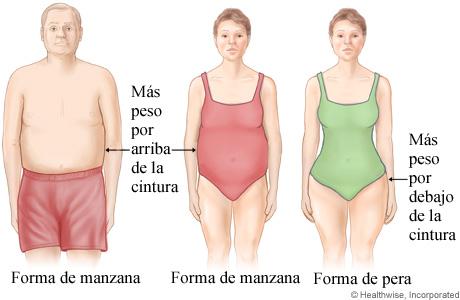Imagen de distribución de grasa corporal en forma de manzana y de pera