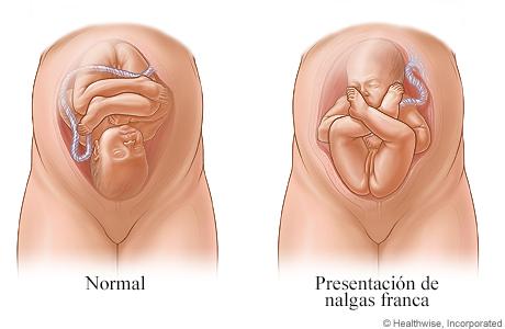 Imágenes de presentación normal y presentación de nalgas franca del feto