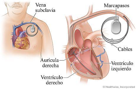 Ubicación del marcapasos y cómo está conectado al corazón