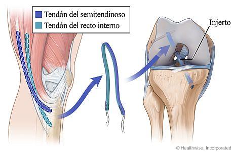 Injerto de isquiotibiales para la cirugía del LCA, en la que se muestran los tendones usados y el injerto colocado en los huesos de las partes superior e inferior de la pierna