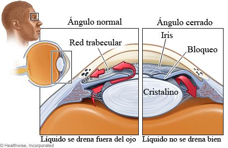 Imagen de las estructuras afectadas por el glaucoma de ángulo cerrado