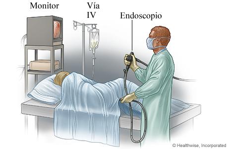 Una persona haciéndose una sigmoidoscopia