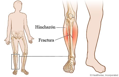 Imagen de una fractura en la parte inferior de la pierna
