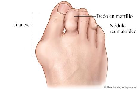Imagen de la artritis reumatoide en el pie
