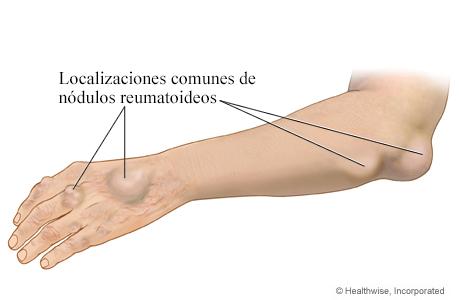 Imagen de los nódulos reumatoideos
