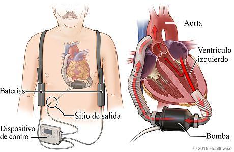 Ubicación del dispositivo de asistencia ventricular (VAD), las baterías y el controlador, con detalle del VAD bombeando sangre desde el ventrículo izquierdo del corazón a la aorta