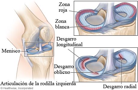 Zonas de sanación de menisco y tipos de desgarro de menisco