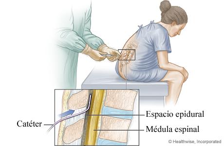 Colocación de un catéter epidural para el trabajo de parto