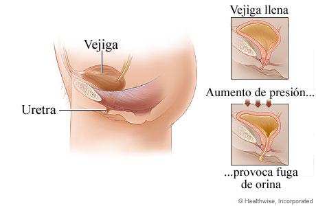 Incontinencia urinaria por esfuerzo en mujeres