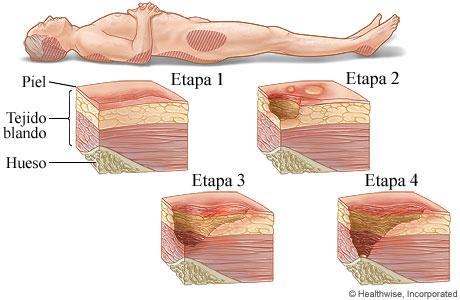 Las cuatro etapas de las lesiones por presión