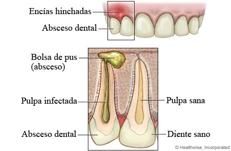 Encías hinchadas y absceso dental, con detalle de un absceso dental y un diente sano