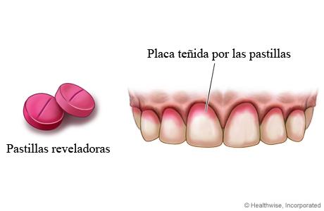 Pastillas reveladoras y placa teñida en los dientes