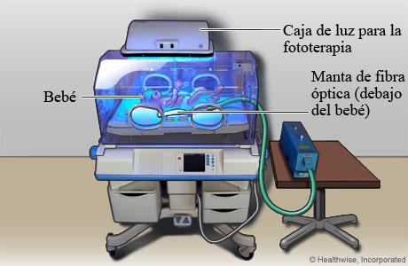 Bebé recibiendo fototerapia para la ictericia