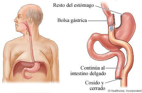 Cirugía de derivación gástrica para la obesidad