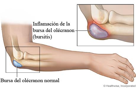 Una bursa del codo normal comparada con una bursa inflamada (bursitis)