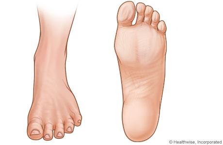 Imágenes del pie izquierdo