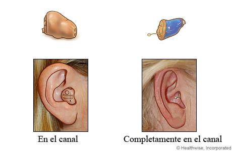 Estilos de audífonos