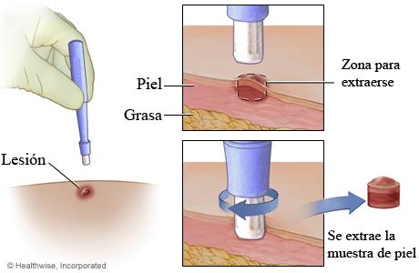 Biopsia en sacabocados